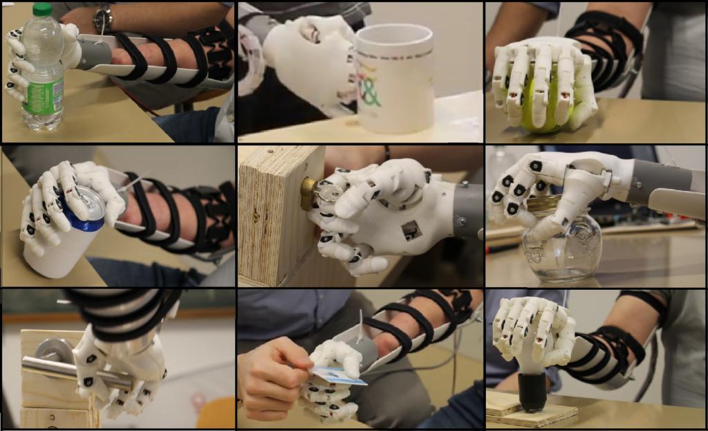 Prothèses de la main: nombreuses données à disposition!
